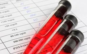 Анализ на гормон ТТГ у женщин и его расшифровка