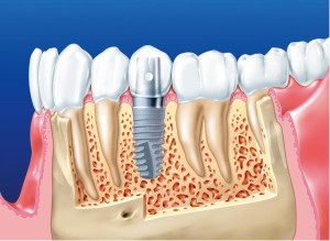 Что такое дентальные импланты и для чего они нужны